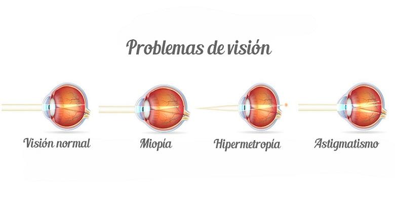 947d201a3e3c8 ¿Qué es el astigmatismo, la miopía, la hipermetropía, y la presbicia